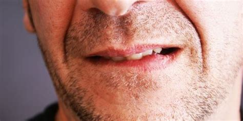 How to Get Rid of a Painful Lip Pimple-Lip Pimple Treatment