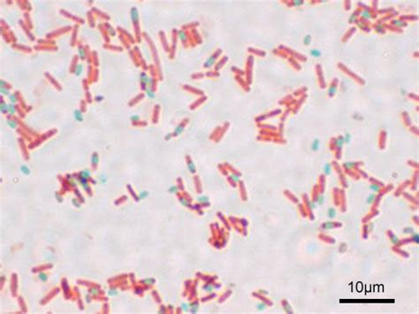 Bacterial Structure - WikiEducator